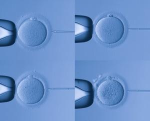 La inseminacion artificial